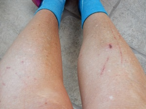 So this is what my legs look like after our scrambling hike. Kathys are similar.